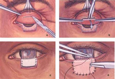 Eyelid Conjunctival And Orbital Tumors An Atlas 3e Shields hughes tarsoconjunctival flap procedure cell carcinoma
