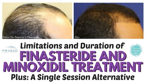finasteride dosage uses side effects for hair loss the lifelong duration of finasteride and minoxidil hair