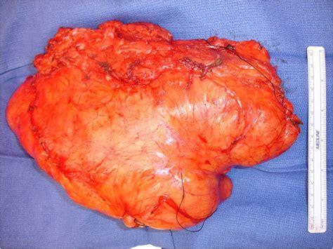 fatty tumor tumor surgery bone cancer tumors sarcoma surgeon nyc