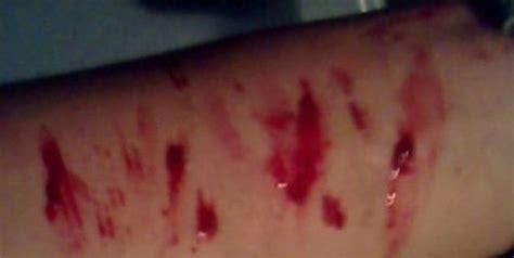 imagenes emos q se cortan nenas de un colegio de santiago del estero quot juegan quot a cortarse