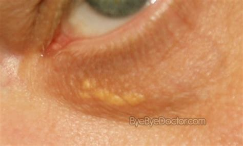 spots on skin white spots on skin pictures causes and treatment