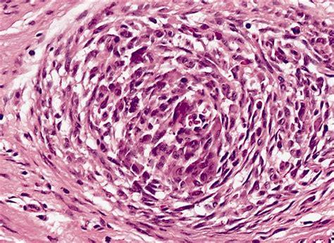 Hhf35 Pathology Outlines by Anabible Dr Michels Tumeur Fibrohistiocytaire Plexiforme