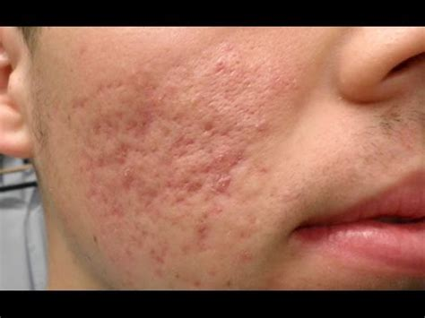 best acne scar best acne scar removal home treatment acne scars on back