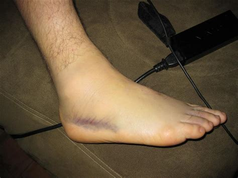 sprained ankle sprained ankles