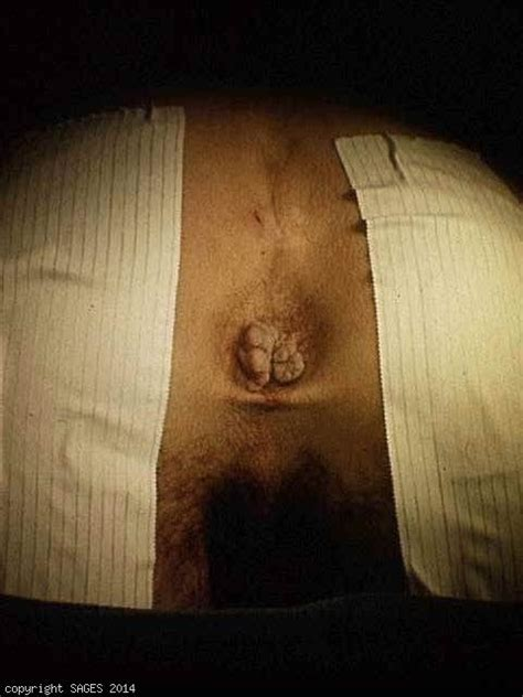 images of hemorrhoids external hemorrhoids sages image library