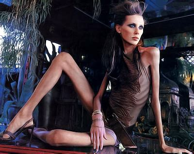 Michel Annerina: Anorexic Models Die on the Catwalk