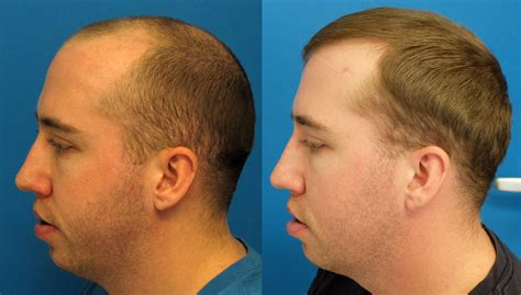 hair transplant america top hair transplant surgeons in america what are the