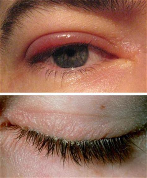 imagenes de ojos infectados blefaritis tratamiento y remedios caseros operaci 243 n de ojos