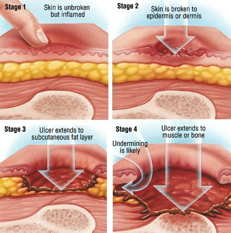 bed sores stage 1 what is a decubitus ulcer decubitus ulcer lawyer info