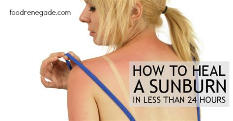 How Does It Take To Heal From C Section by How To Heal A Sunburn In Less Than 24 Hours Food Renegade