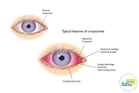 can you get pink eye from a how to get rid of pink eye conjunctivitis without antibiotics fab how