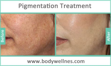 before and after pictures of pigmentation on skin face skin pigmentation treatment hyperpigmentation in