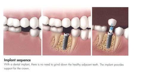 for dental implants in mexico mexico dental implants brio dental