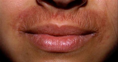 dermatite da allergia alimentare dermatite ecco perch 233 l aloe vera facilita la guarigione