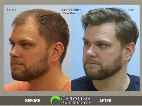 hair transplant before and after hair transplant before after photos