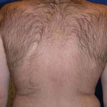 groupon haircut san antonio san antonio hair cut laser san antonio hair cut laser