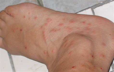 treatment for bed bugs bites how to kill bed bugs bed bug treatment neat clean living