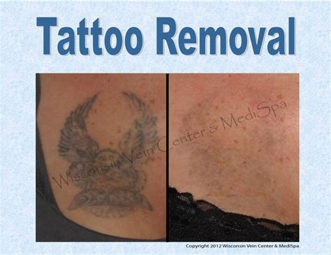 tattoo removal method 51 best images about treatments we on
