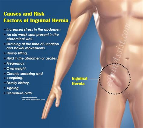hernia surgery houston hernia center advanced houston