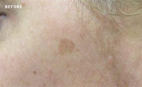 light brown spots on skin vancouver skin sun spots treatment nuage laser