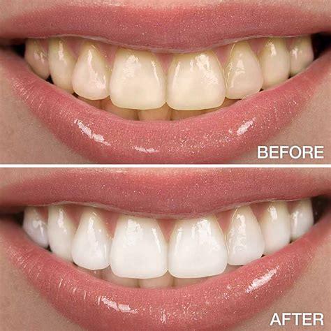 tooth wildwood cosmetic tooth whitening wildwood dental penn valley california