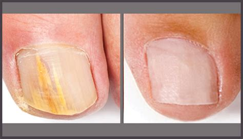 light treatment for nail fungus for skinpossible laser light calgary laser clinic
