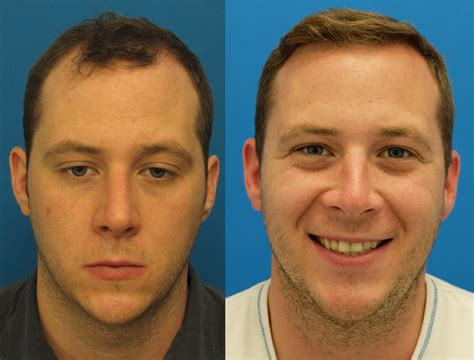 who does fut hair transplant in ohio before and after hair transplant 4005 grafts hasson wong