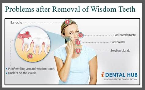 problems after removal of wisdom teeth dental care