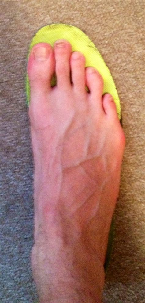 blisters from running shoes running shoes causing blisters 28 images prevent