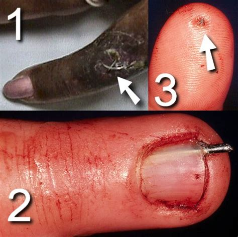 split nail bed split nail bed pictures photos