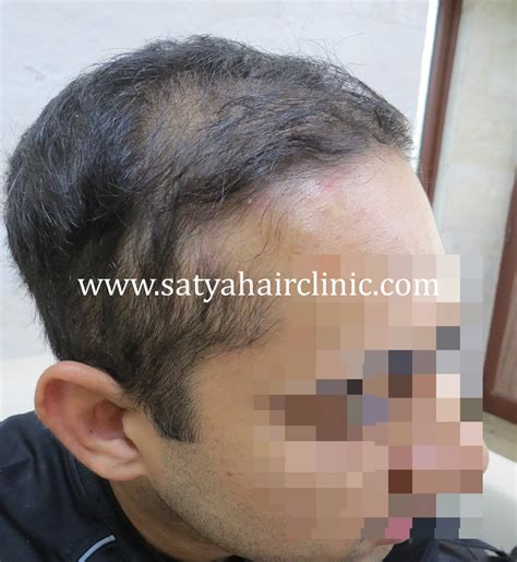 salman synthetic hair synthetic hair transplant biofibre 1400 grafts