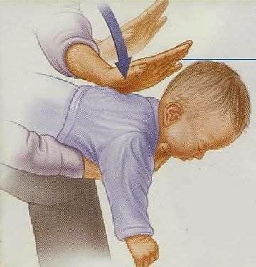 Resusitator Bayi bayi tersedak doktorbudak