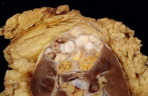carcinoma portio webpathology a collection of surgical pathology images