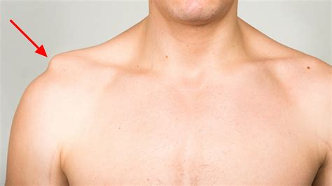 shoulder images separated shoulder causes symptoms exercises treatment