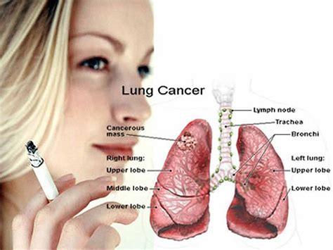 Obat Amandel Alami Yang Paling Uh obat herbal penyakit paru paru bocor obat paling uh
