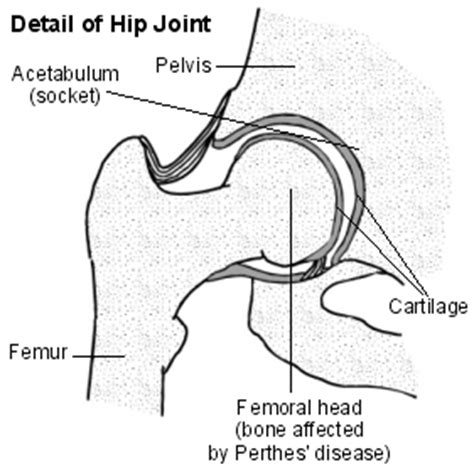 diagram of the hip perthes disease max superspecialty ortho clinic