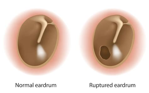 Eardrum Rupture   Otolaryngology Specialists of North