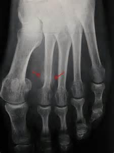 fracture de fatigue au pied desala org quot tout seul