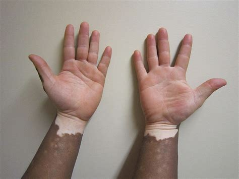 henna tattoo vitiligo what does vitiligo look like