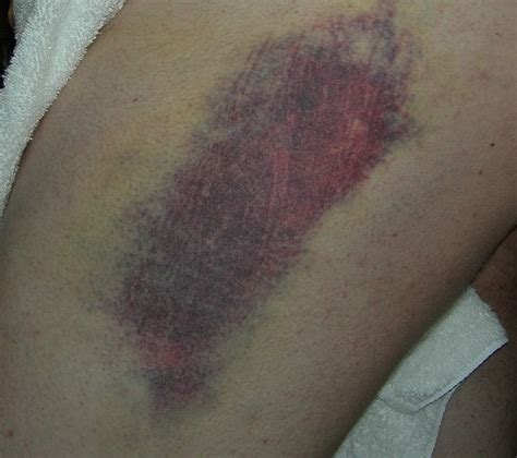 bruise colors do your bruises look like this i had no idea it meant