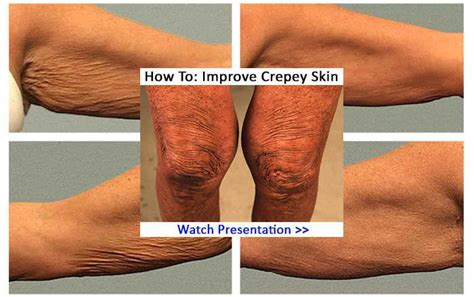 crepey skin on arms my crepey skin remedies natural treatments to help get