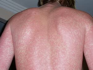 common causes of full body rashes