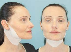 How Much Does A Face And Neck Lift Cost how much does a neck lift cost health 2 0 blog