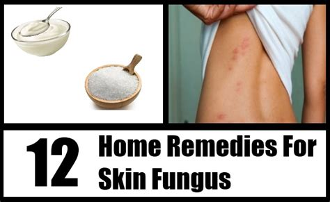 12 skin fungus home remedies treatments and cures