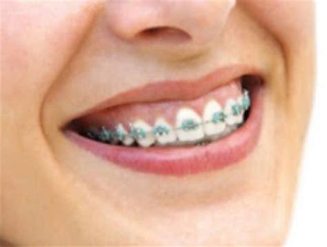 Biaya Pemutihan Gigi Di Jogja senyum di balik kawat gigi pasang behel di jogja