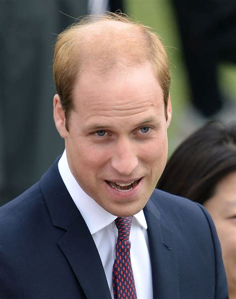prince william prince william eyes hair transplant after admiring soccer