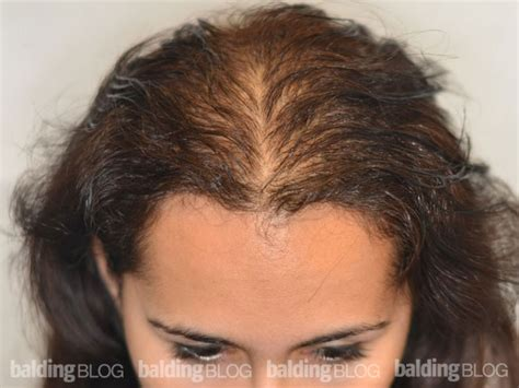 thinning hair in women on top of head balding blog pigments archives page 4 of 13 hair
