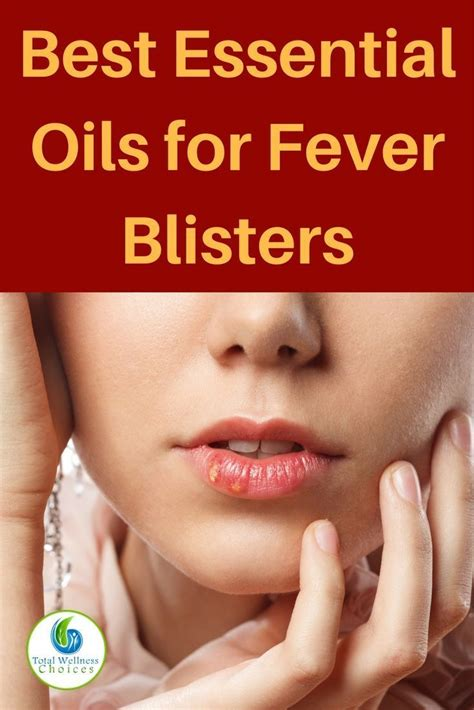 Can Blisters In Be From Detox by Best 25 Remedies For Fever Blisters Ideas On