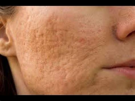 cicatrices como eliminar las cicatrices del acne youtube