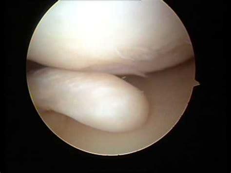 menisco interno lesionato meniscectomia artroscopica su menisco degenerato lesionato